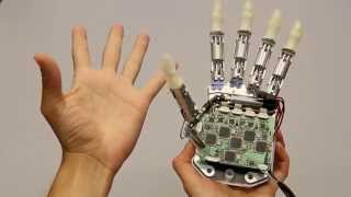 Amputee feels in real time with bionic hand